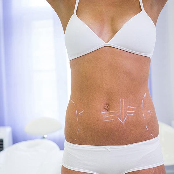 Liposucción y lipofilling